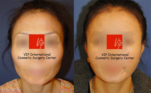 Stem Cell Fat Graft	 - Temple & cheek Fat graft