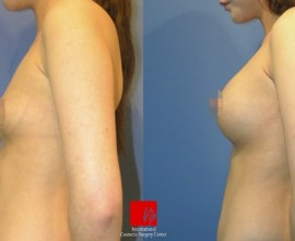 Breast augmentation with round type implant