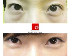 Lower Eyelid Fat Relocation