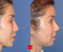Revisional rhinoplasty using Rib carilage