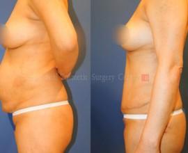 Abdominal surgery + Liposuction