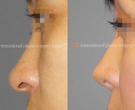 Long nose correction