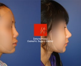 Revision of silicone nose with Rib cartilage