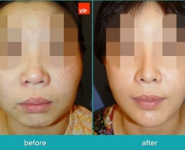 Rib Cartilage Rhinoplasty, Face Contouring Surgery, V-line S…