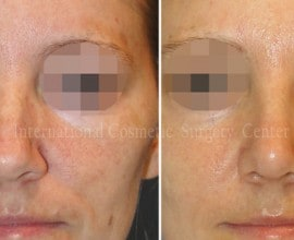 Septal deviation, humped nose correction
