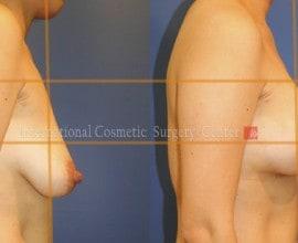 Breast lift & augmentation