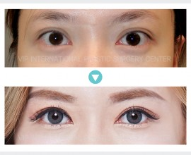 Incision Double Eyelid Surgery