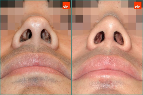 Nose Surgery - Septal cartilage rhinoplasty, Septal Deviation, Long Nose