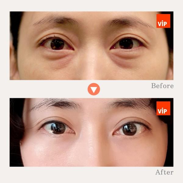 Eye Surgery - Lower Eyelid Fat Relocation