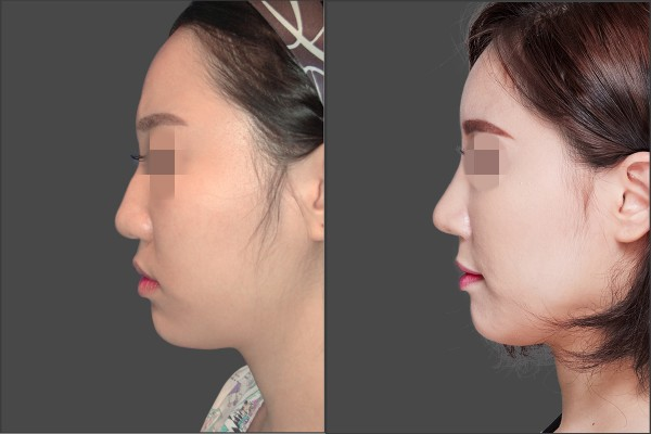 Nose Surgery, Stem Cell Fat Graft - Combination Rhinoplasty, Fat graft