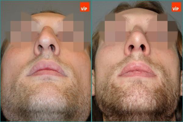 Nose Surgery - Septal cartilage rhinoplasty, Hump Nose