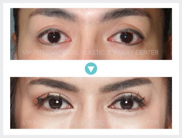 Eye Surgery - Ptosis Correction