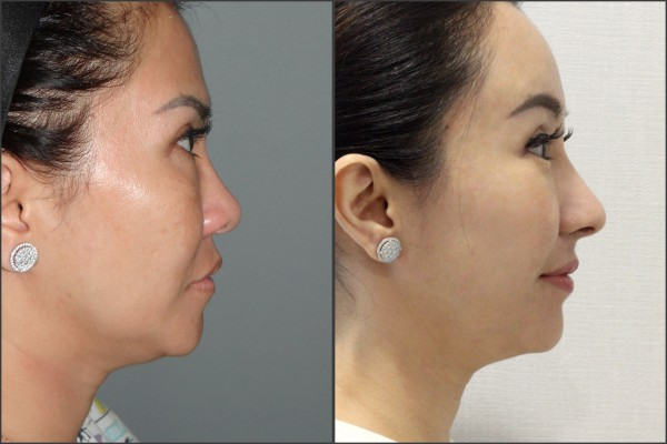 Nose Surgery, Eye Surgery, Face Lift, Stem Cell Fat Graft - Rib cartilage Rhinoplasty, Endoscopic Forehead Lift, Fat graft, Lateral Canthoplasty