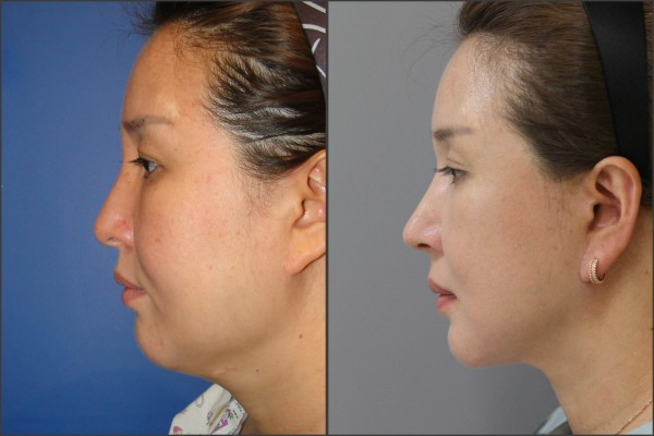 Nose Surgery, Eye Surgery, Face Lift - Facelift, Combination Rhinoplasty, Eyelid Surgery