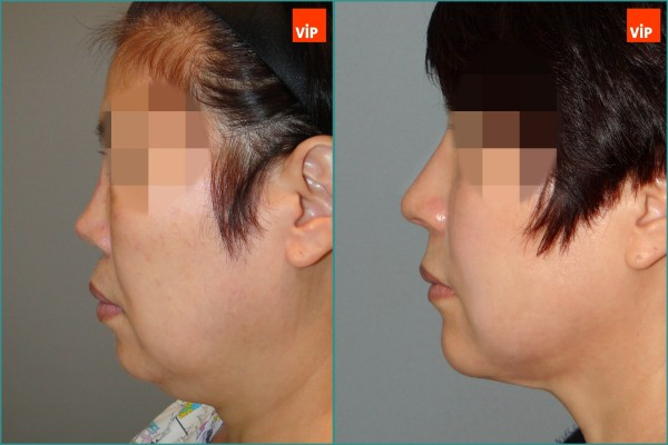Nose Surgery, Face Lift - Rib Cartilage Rhinoplasty, Facelift