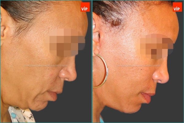 Face Lift - Neck lifting