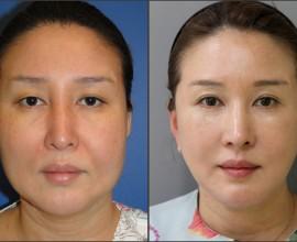 Facelift, Combination Rhinoplasty, Eyelid Surgery
