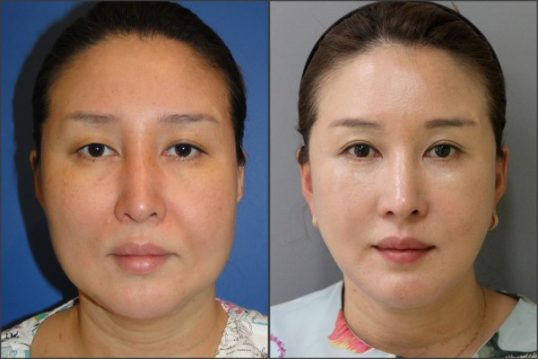 Nose Surgery, Face Lift - facelift , septal rhinoplasty