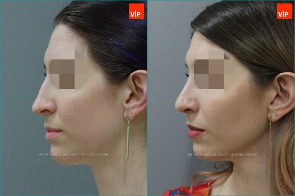 Nose Surgery - Septal cartilage rhinoplasty, Septal Deviation