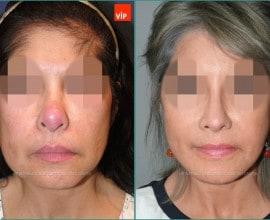 Face lift / Revision rhinoplasty / Rib cartilage rhinoplasty