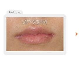 Fat graft - lips