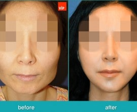 Face Contouring Surgery, V-line Jaw Reduction, Fat Graft, Ch…