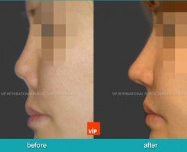 Post infection contracted nose correction with rib cartilage…