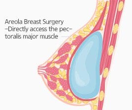 Areola Breast Surgery(W-areola Incision method)