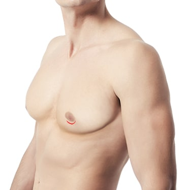 Sub-areolar Incision Method of Male Breast Reduction