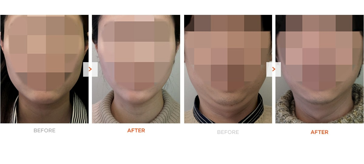 Non surgical v line before and after