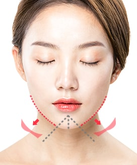 Chin Surgery Method - T-Cut Chin Surgery – Step 3