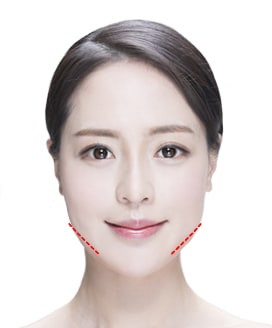Jaw Reduction Surgery Method – Step 3