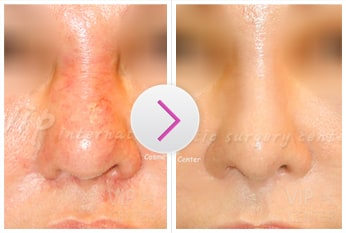 Revision Rhinoplasty Before and After(Foreign implant side effect)