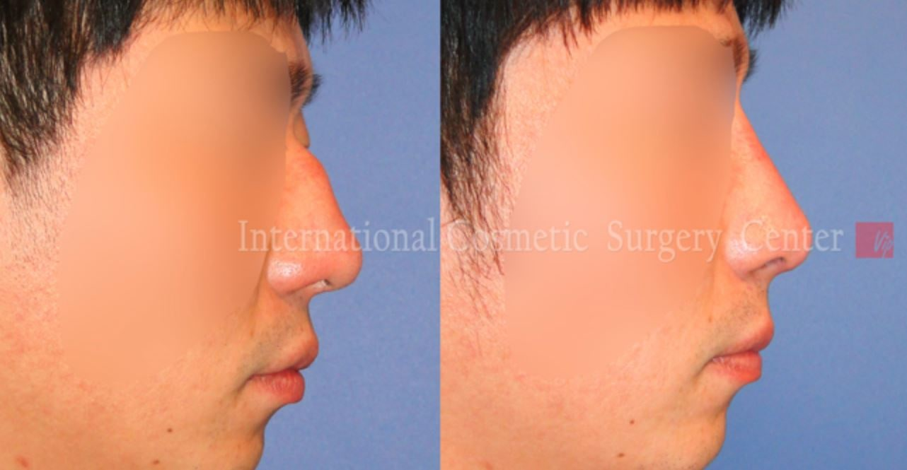 Revision Rhinoplasty Before and After(Droopy Nose)