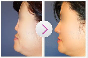 Protruded Mouth Due to Mid-Face Retrusion Before and After