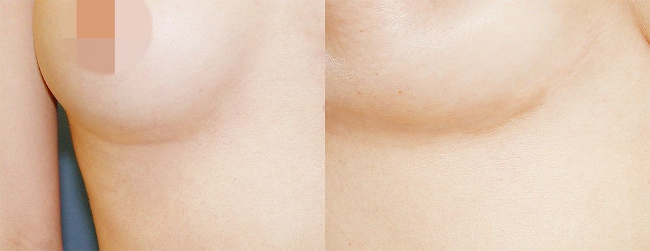 For Rib Cartilage Rhinoplasty, VIP Plastic Surgery performs a minimum incision(2-3M) along the line underneath the breast line to minimize the scar.