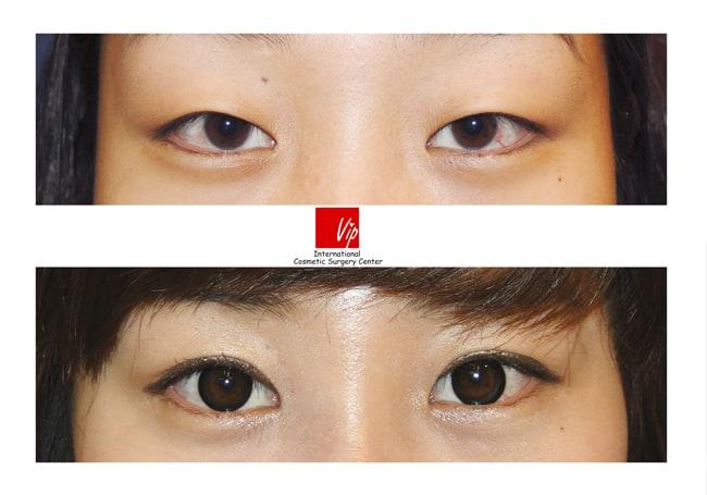 Eye Surgery, Ptosis Correction - Ptosis correction