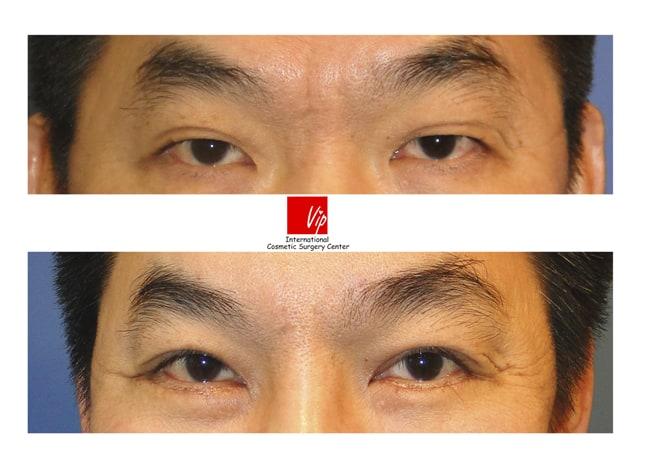 Eye Surgery, Ptosis Correction - Forehead endoscope surgery & Upper blepharoplasty