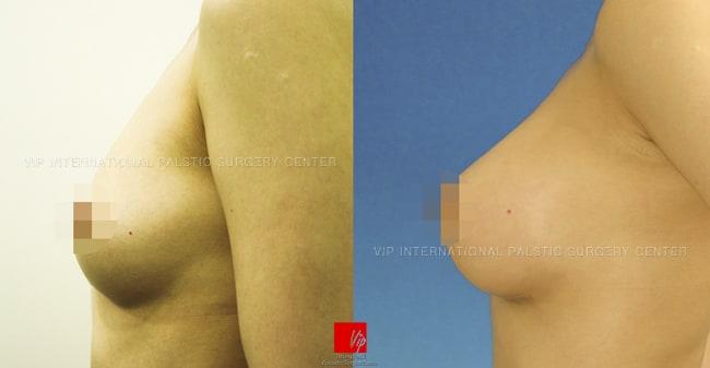 Breast Surgery, Body Contouring - VIP Tear drop augmentation