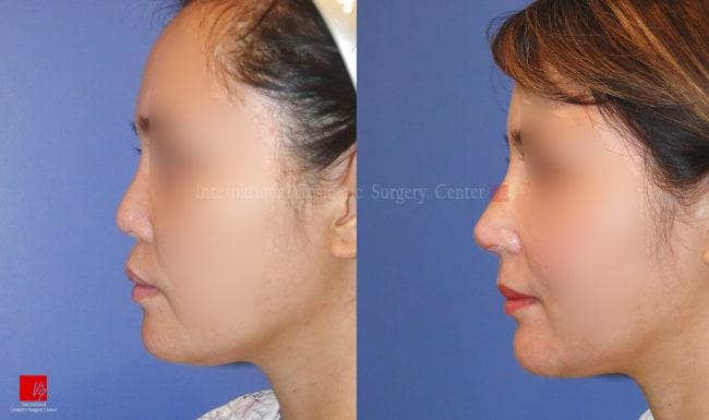 Harmony-Rhinoplasty, Protruded Mouth Correction Rhinoplasty, Rib cartilage Rhinoplasty, Contracted Nose, Revision Rhinoplasty - VIP Harmony face with Rib cartilage