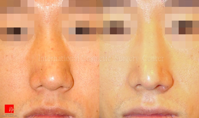 Rib cartilage Rhinoplasty, Each Cases Nose, Septal Deviation - Septal deviation - correction of functional & cosmetic problems at the same time