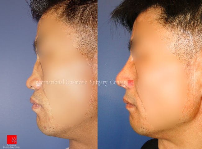 Harmony-Rhinoplasty, Protruded Mouth Correction Rhinoplasty, Rib cartilage Rhinoplasty - Flat nose correction with Rib cartilage (collapsed due to failure of septal deviation correction)