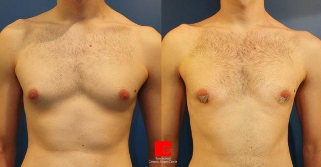 Breast Surgery - Gynecomastia