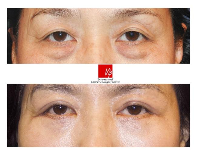 Eye Surgery, Double Fold, Lower Blepharoplasty - Lower eyelid blepharoplasty