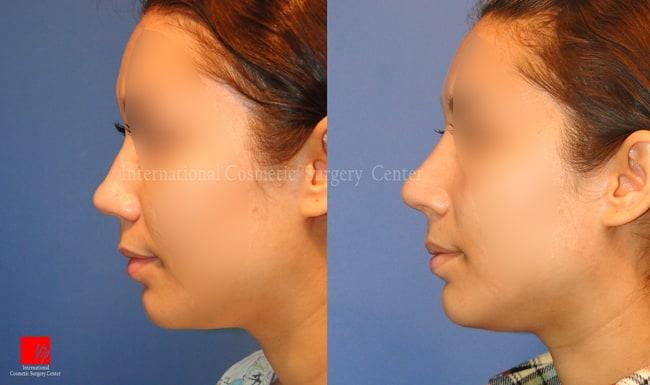 Nose Surgery, Harmony-Rhinoplasty, Rib cartilage Rhinoplasty - Bulbous and big nose