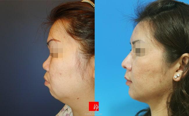Nose Surgery, Harmony-Rhinoplasty, Rib cartilage Rhinoplasty, Facial Bone Surgery - Harmony Face which includes rhinoplasty and genioplasty