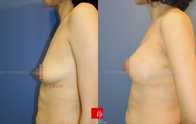 Breast Surgery, Body Contouring - Tear drop breast augmentation