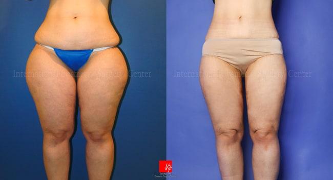 Body Contouring - Body Liposuction