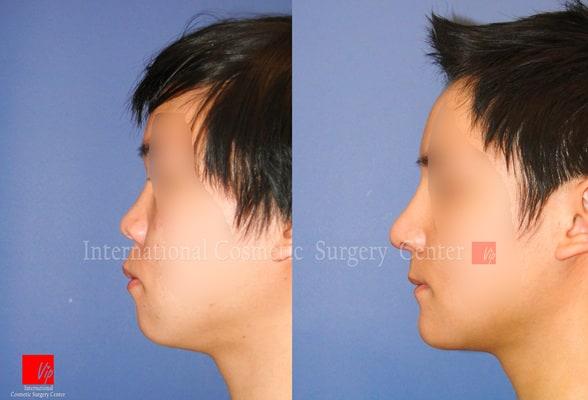 Nose Surgery, Facial Bone Surgery - Rhinoplasty, Genioplasty