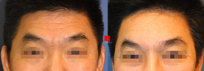 Face Lift - Forehead endoscope surgery-improvement of deep wrinkles